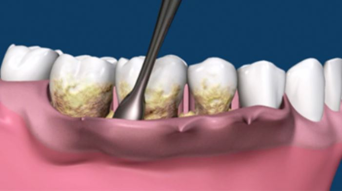 periodoncia-tratamiento